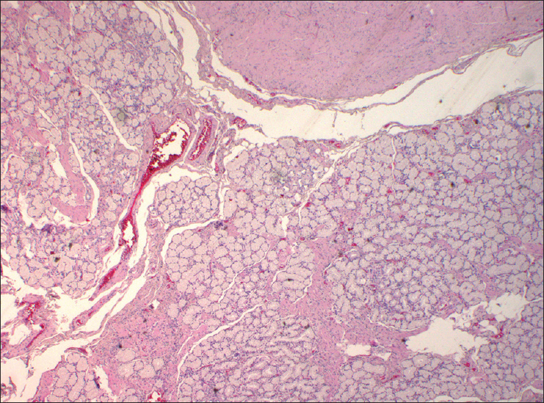 Figure 3: Nodule heterotopic glands of Brunner <i>(Courtesy of the Operating Unit of Pathology, Hospital of Cona, Ferrara)</i>